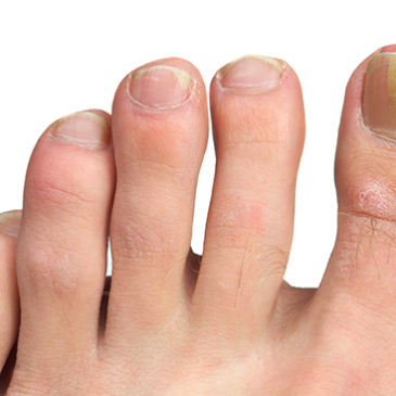 Symptoms, causes and treatment for fungal nail infection